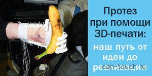 3D-печать, протез