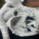 Применение 3D-печати в педиатрической кардиохирургии