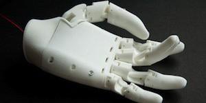 3D-печать, протез, экспресс-протезирование