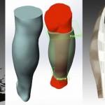 Косметический протез икроножной мышцы, напечатанный на 3D-принтере