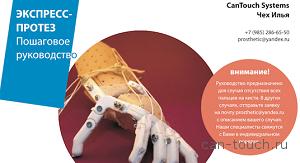 3D-печать, протез, косметический протез