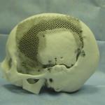 CAD-моделей по данным КТ и МРТ, 3D-печать, краниопластика
