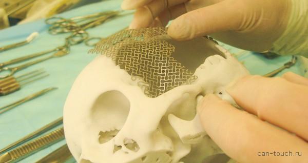 медицина, краниопластика, 3D-печать, хирургия
