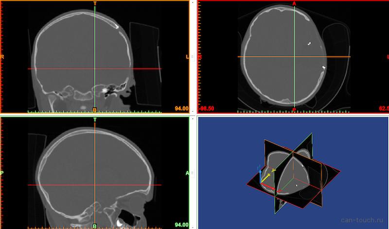 Краниопластика: применение 3D-печати для пластики черепа