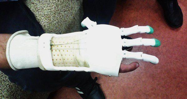 3D-печатный протез: применяем сканирование для создания индивидуального тягового протеза