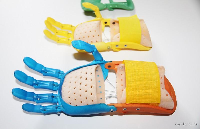 3D-печать, медицина, протез