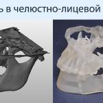 Применение 3D-печати в челюстно-лицевой хирургии
