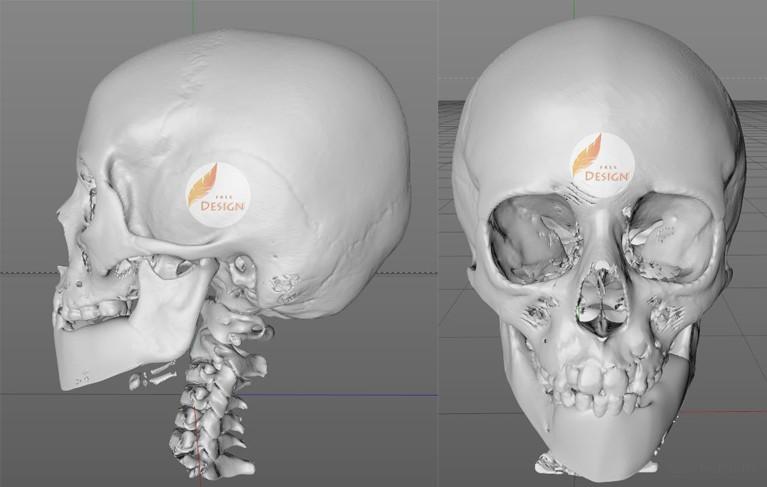 3D-печать, медицина