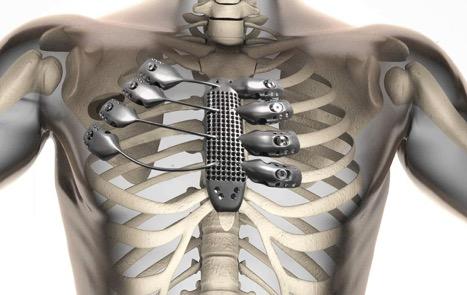 3D-печать металлом: DMLS, прототипирование, услуги проектирования, 3d-моделирование