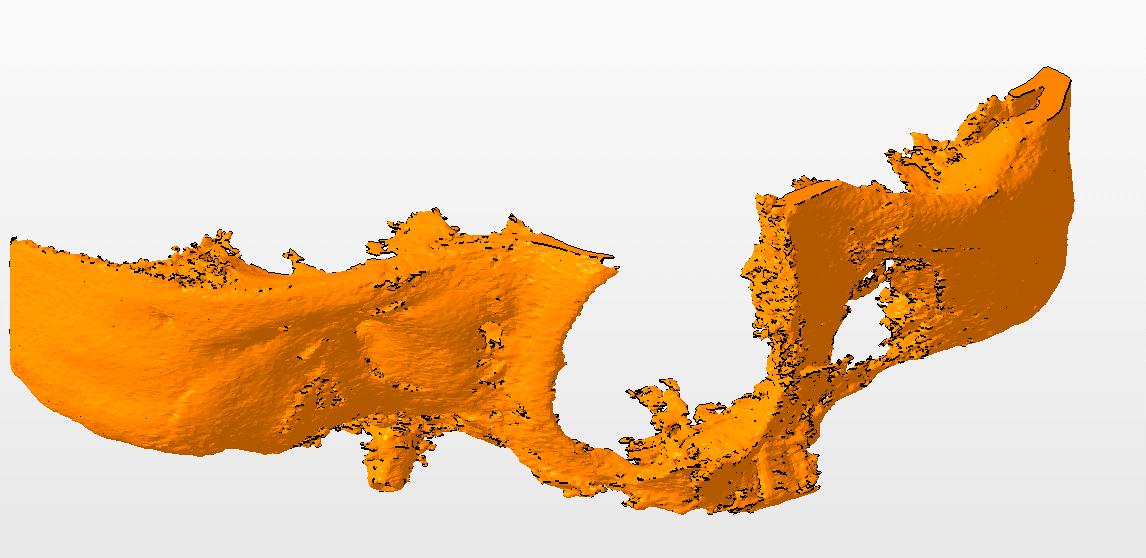 3D-модель по КТ