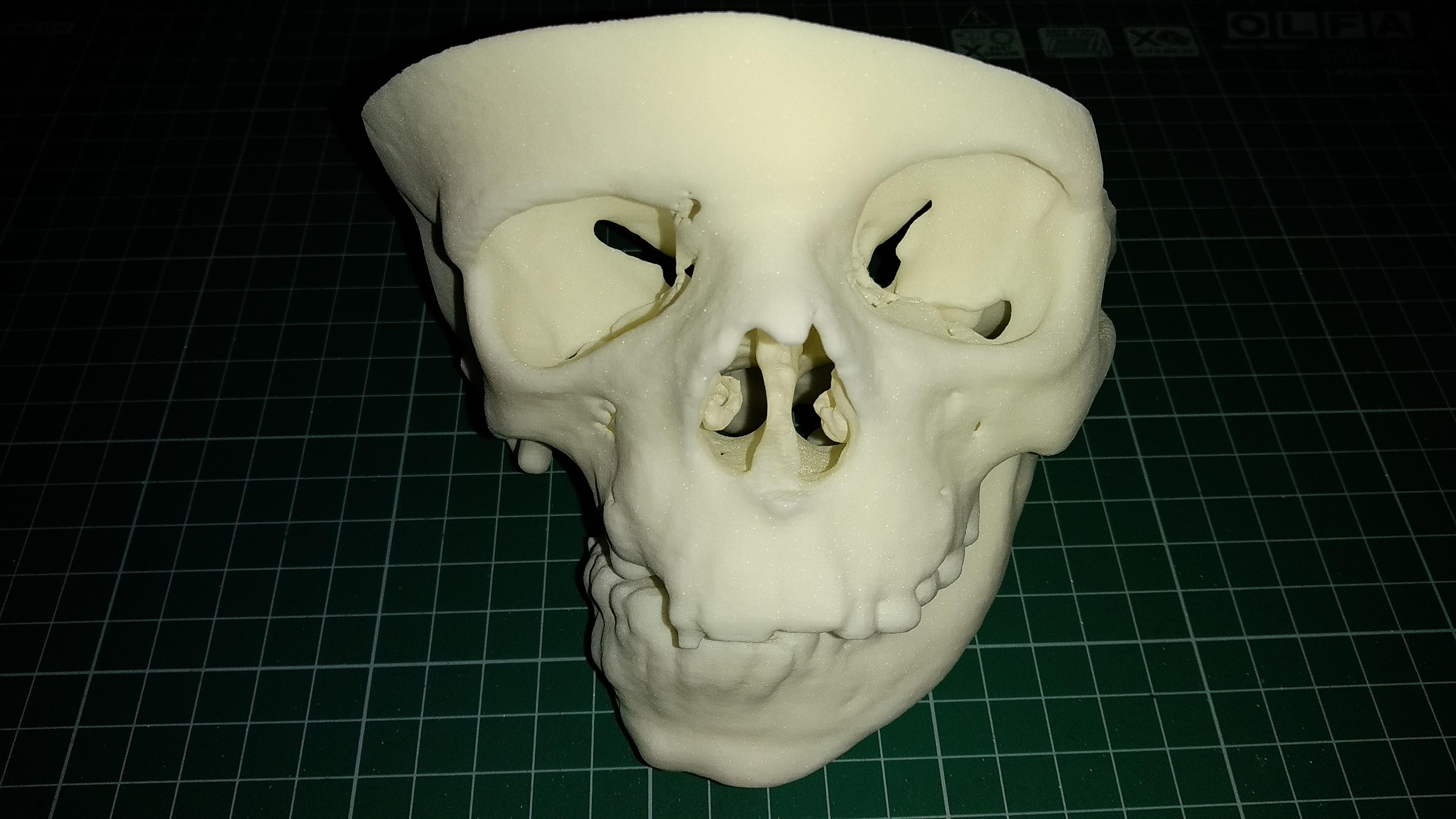 3D-печать по снимкам КТ