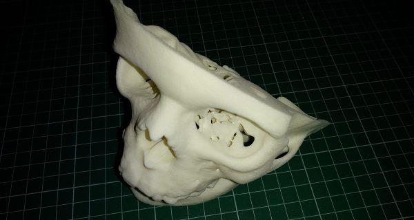3D-печать помогает при проведении челюстно-лицевых операций