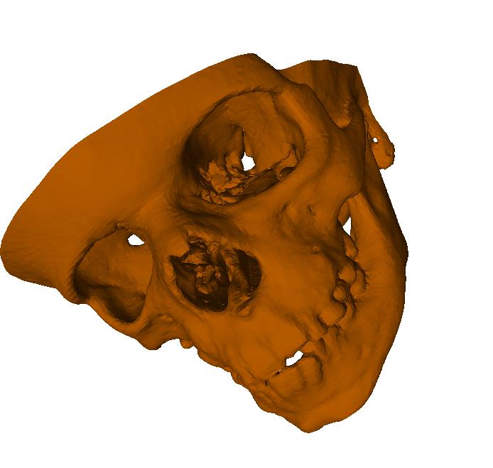 3D-модель по снимкам КТ